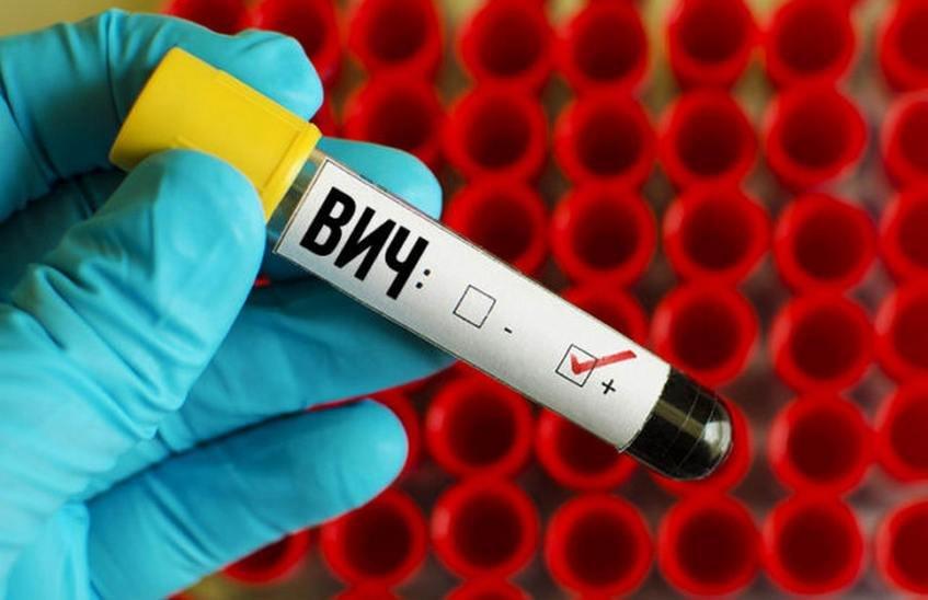 5 случаев ВИЧ выявлено в Сарове в октябре